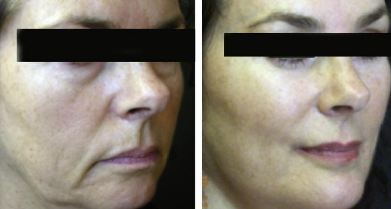 Cosmetic surgery egypt Dr. Adel Wilson face lift laser bariatry plastic