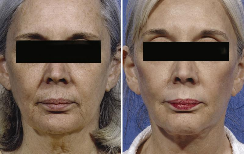 Egypt face lift neck tighten cosmetic