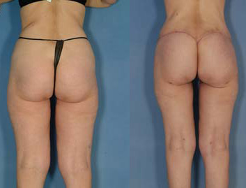 Buttock lift implant egypt plastic surgery cairo tuck