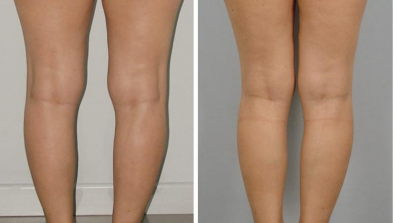Calf leg lift implant egypt plastic surgery cairo tuck