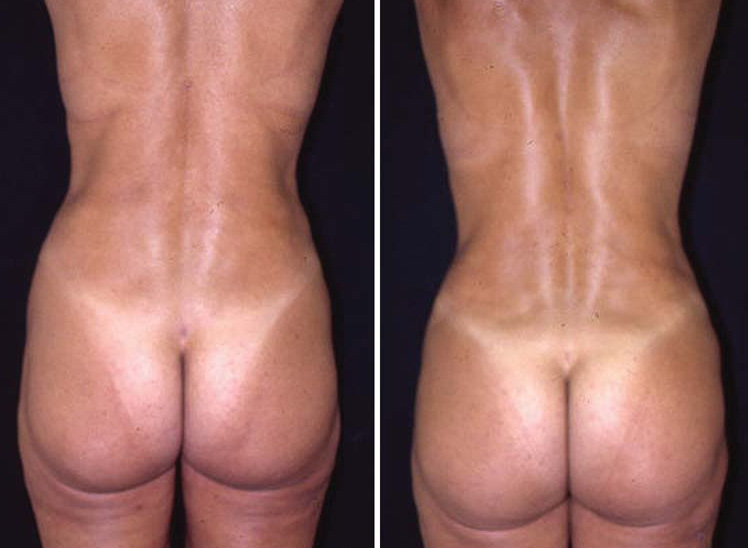 Cosmetic Surgery in Egypt Fat Liposuction Buttock lift implant  cairo tuck