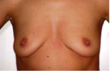 Breast Sagging atophy lift augmentation Cosmetic Surgery Egypt Silicone