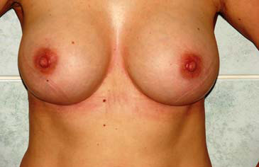 Egypt Plastic Surgery Enlargement Breast Atrophy silicine implant augmentation