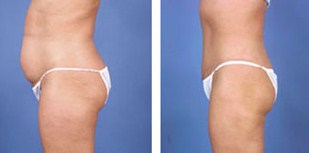 Laser Liposuction,Smart liposuction,Abdominal Liposuction,Egypt,Plastic Surgery
