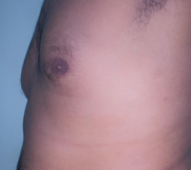 Breast Reduction, Breast Lift, Gynecomastia, Male Breast Reduction, Best Plastic