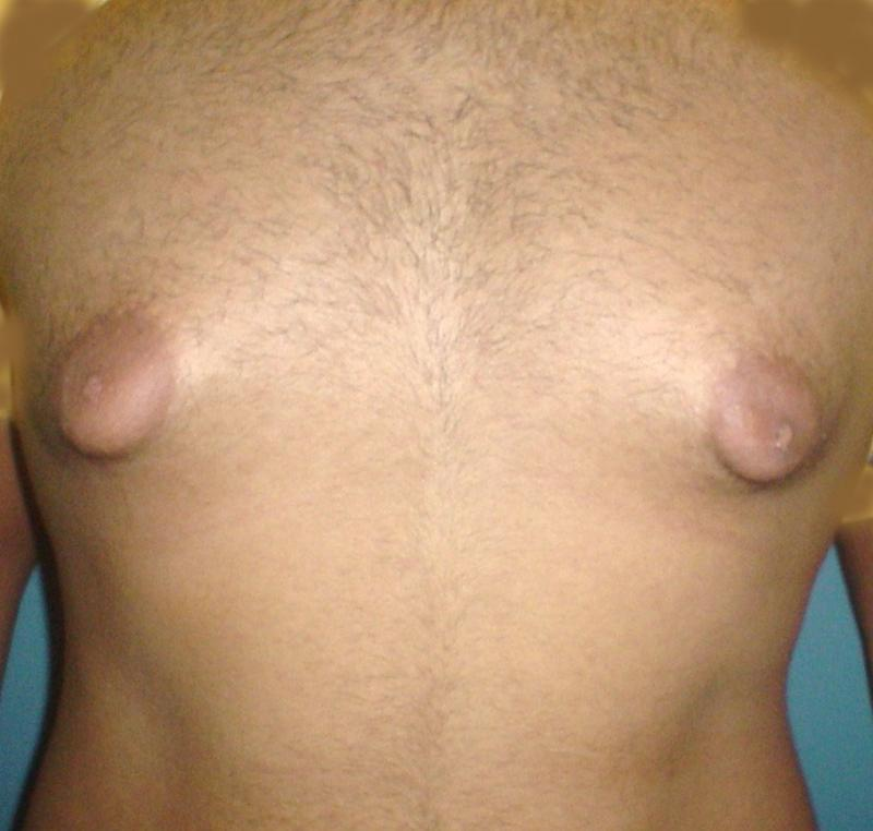 Plastic Surgery,Egypt,Cosmetic,Gynecomastia,male Breast reduction,Liposuction