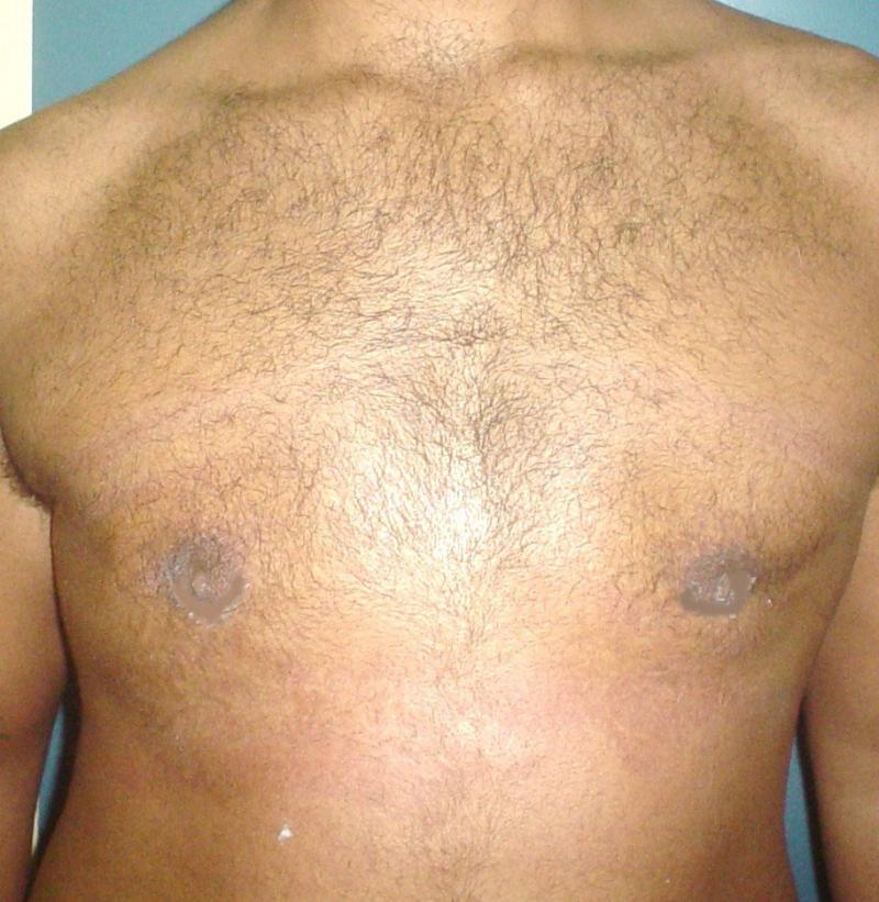 Cosmetic Surgery,Egypt,Plastic,male Breast reduction,Gynecomastia,liposuction