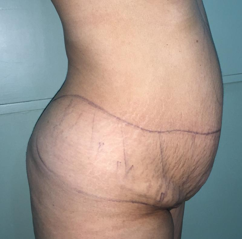 Abdominoplasty, Tummy tuck, Best Cosmetic Surgery, Vaser Liposuction, Love Handl