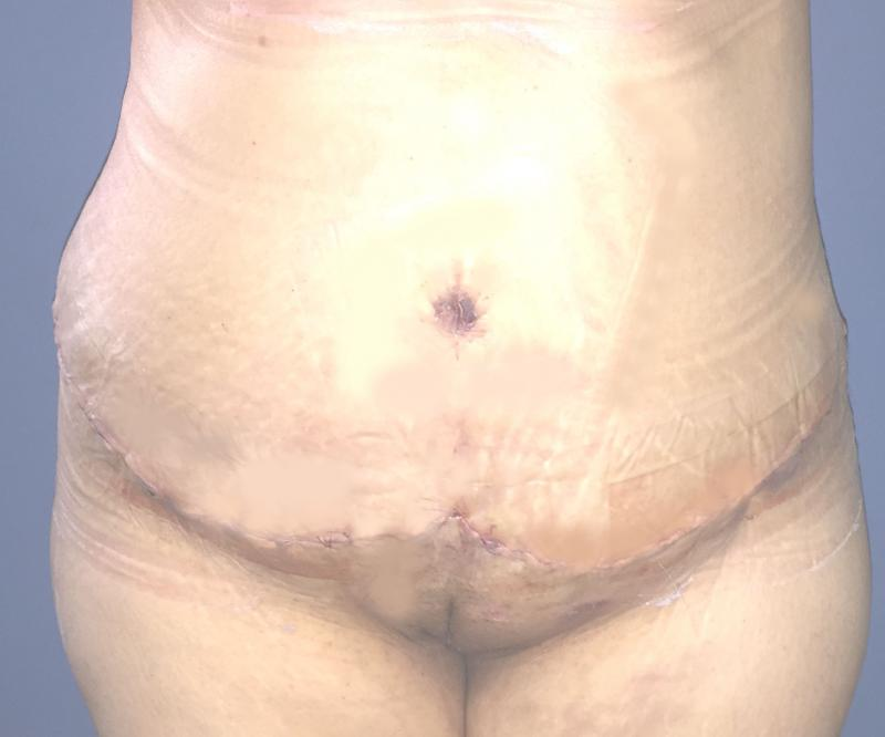 Abdominoplasty, Tummy tuck, Best Plastic Surgery, Laser Liposuction, Love Handle