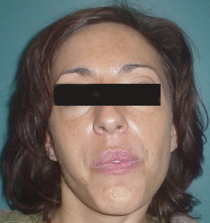 Cosmetic Surgery Egypt,Plastic Surgery Egypt, Aesthetic Egypt,cheek augmentation