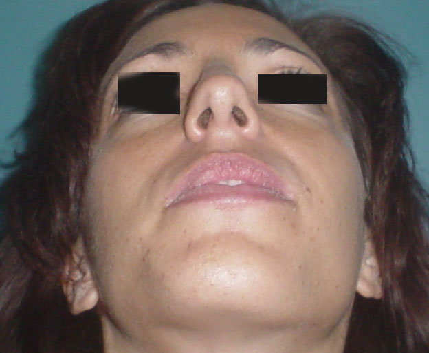 Aesthetic Surgery in Egypt,Cheek implants,Plastic Surgery,Silicon Cheek,Liposuct