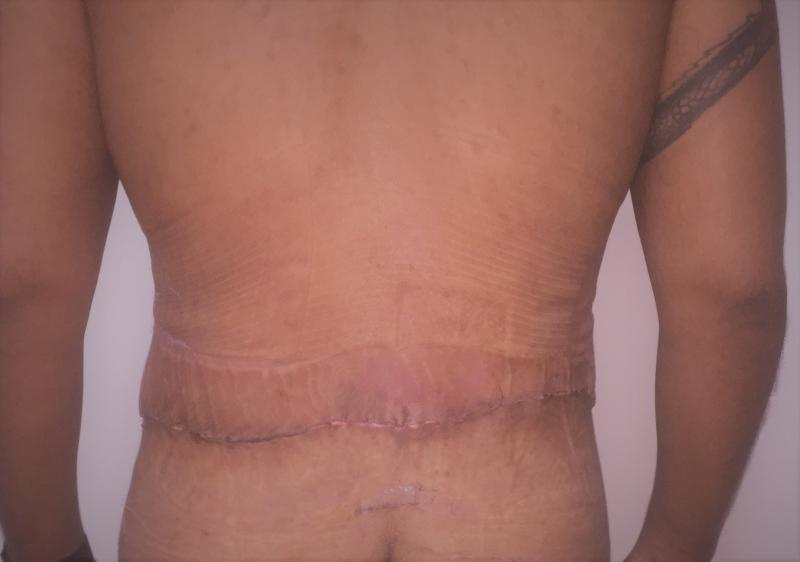 Back Lift, Belt lipectomy, Massive Weight Loss, Best Cosmetic surgery, Tummy tuc