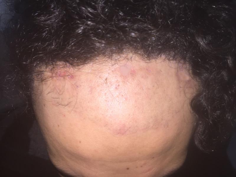 Frontal baldness, Hair Transplantation, DHI, Follicular Unit Extraction, Cosmeti