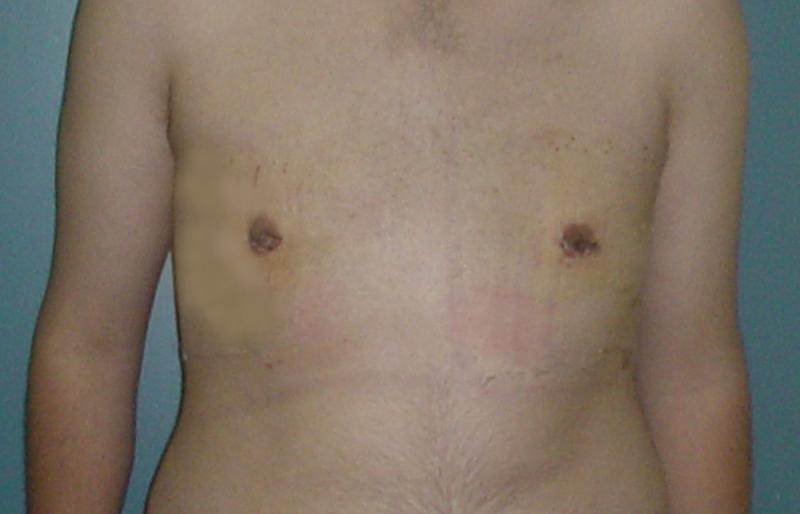 Cosmetic Surgery egypt breast liposuction male gynecomastia reduction