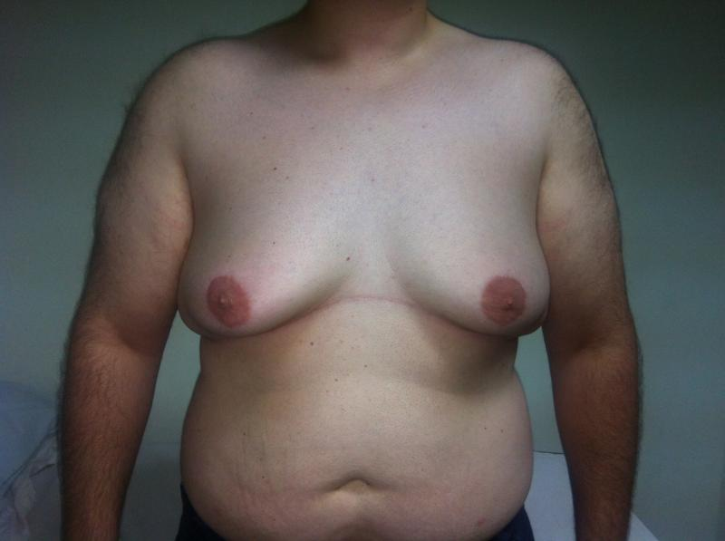 Gynecomastia Egypt, Male Breast reduction, Breast Reduction, Cosmetic Surger