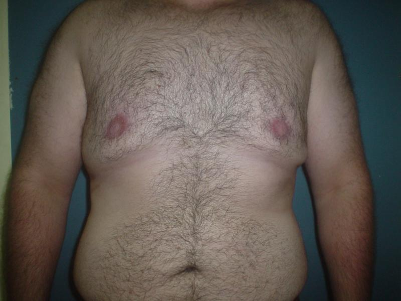 Gynecomastia Egypt, Male Breast reduction, Breast Reduction, Best Plastic Surger