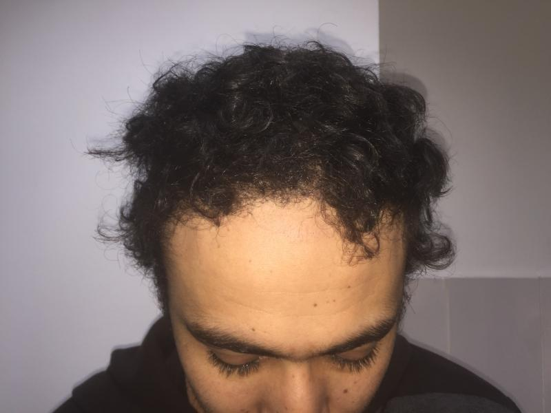 Hair transplantation. FUE, DHI, Follicular Unit Extraction, Male Alopecia Front