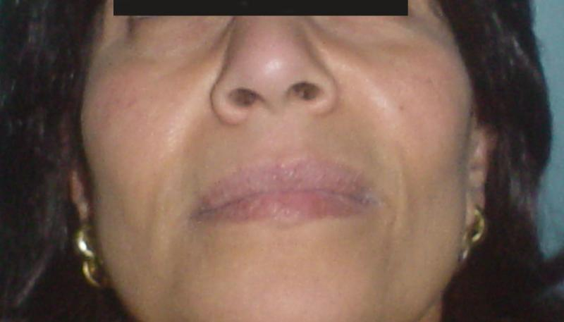 Aesthetic Surgery in Egypt,Cheek implants,Laser Liposuction,Silicon Cheek