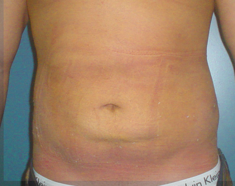 Plastic Surgery in Egypt,Abdominal Liposuction,Laser Liposuction,Fat,Obesity