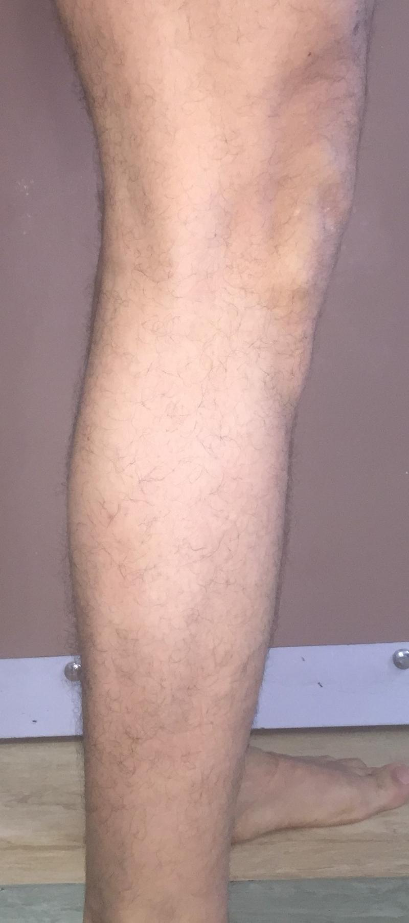 CalfImplants, Calf Enhanement, Leg enlargement, Fat graft, Best Cosmetic Sureger