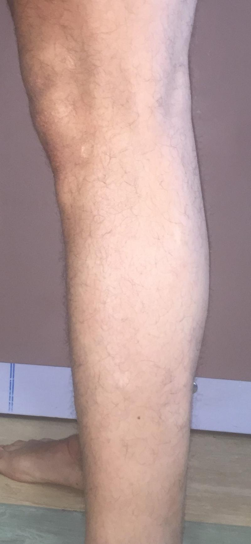 CalfImplants, Calf Enhancement, Leg enlargement, Fat graft, Best Aesthetic Surge