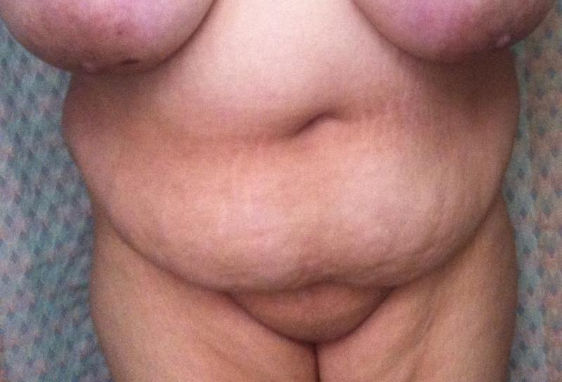 Tummy Tuck Egypt, Abdominoplasty Egypt, Waist Restoration Egypt, Obesity