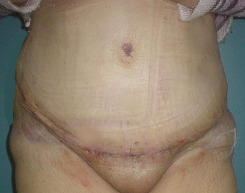 Cosmetic Surg,Tummy Tuck Egypt, Abdominoplasty Egypt, Waist Restoration, Obesity
