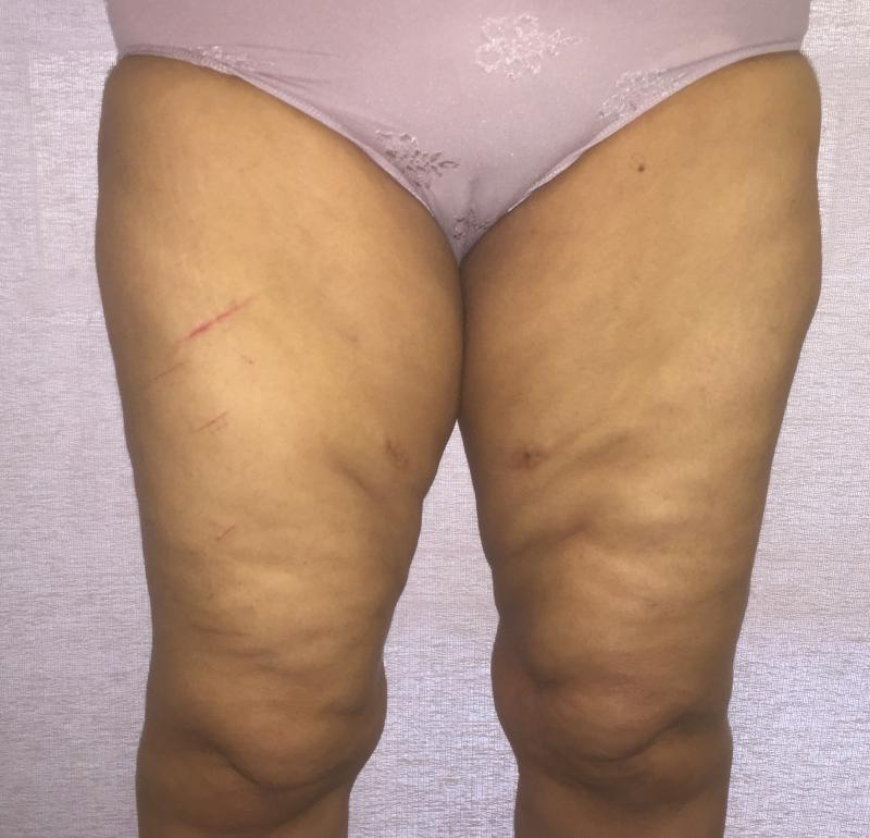 Thigh Lift Liposuction, Vertical Thigh Lift, Medial thigh Lift, Best Cosmetic