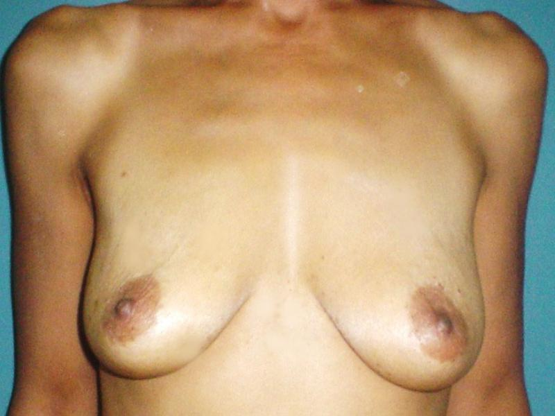 Egypt,Plastric Surgery,Cosmetic Surgery,breast enhancement,breast lift,silicone