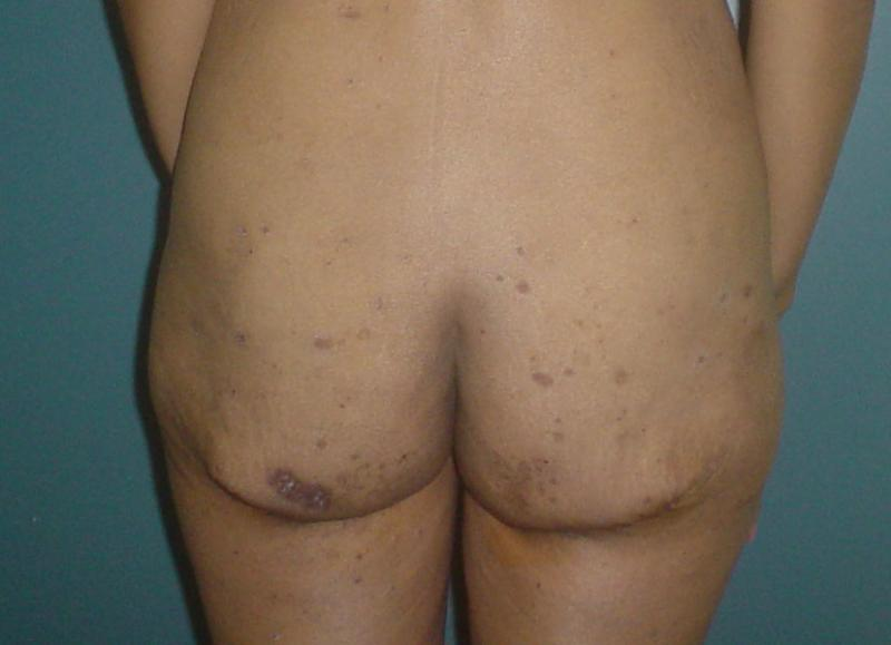 Cosmetic Surgery in Egypt,Buttock lift,Plastic surgery in egypt, Laser Liposucti