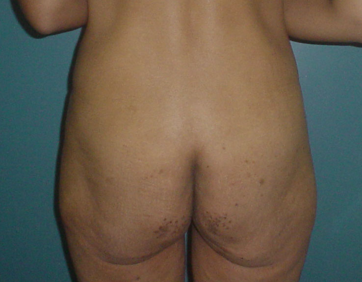 Plastic surgery Egypt,Buttocl lift,Buttock liposuction,Laser liposuction,Obesity