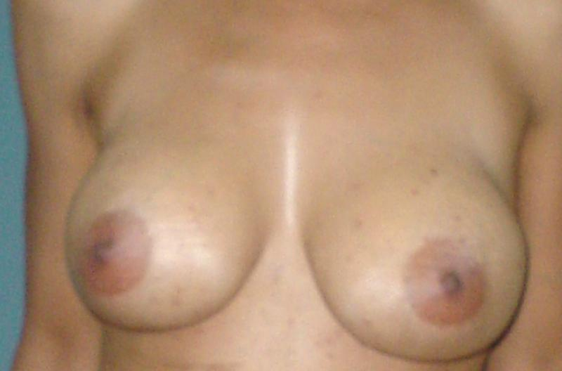 Egypt,Cosmetic Surgery,breast augmentatio,breast enhancement,breast lift,silicon