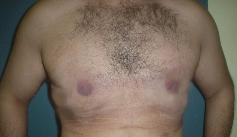 Male Breast Reduction Egypt, Gynecomastia  Vaser Liposuction, Best Cosmetic Surg