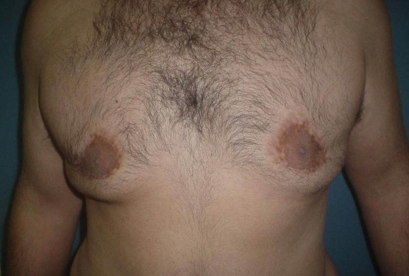 Male Breast Reduction Egypt, Gynecomastia  Vaser Liposuction, Best Plastic Surgr