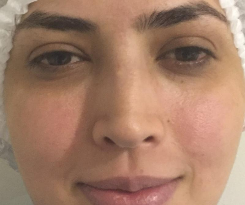 Rhinoplasty, Nose Job, Secondary Rhinoplasty, Nose Hump, Best Cosmetic Surgery