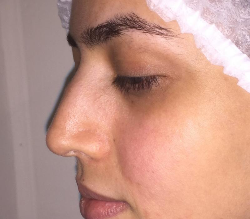 Rhinoplasty, Nose Job, Secondary Rhinoplasty, Nose Hump, Best Plastic Surgery