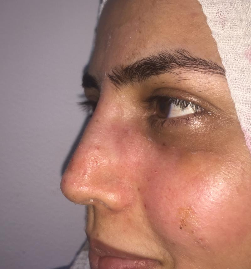 Rhinoplasty, Nose Job, Primary Rhinoplasty, Nose Hump, Best Cosmetic Surgery