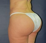 Brazilian Butt Lift, Butt Augmentation, Butt Enlargement, Fat injection, BBL