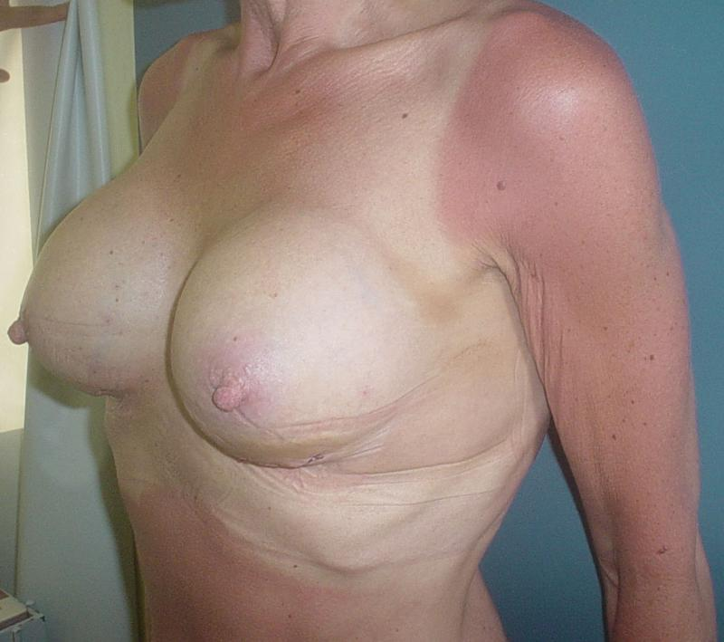 Breast Augmentation in Egypt, Best Cosmetic Surgery in Egypt, Silicon implants