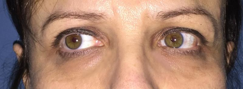 Best Cosmetic Surgery Egypt, Eyelid Surgery, Eyelid Filler, Eyelid Restylane Btx