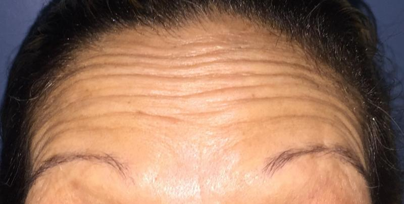 Forehead Wrinkles, Crow's feet, Botox, Botulinum Toxin, Best Cosmetic Surgery,