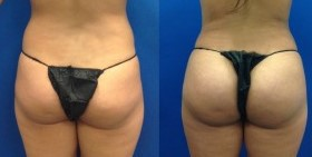 Brazilian Butt Lift, Butt Augmentation, Butt Enlargement, Fat injection, Cosmeti