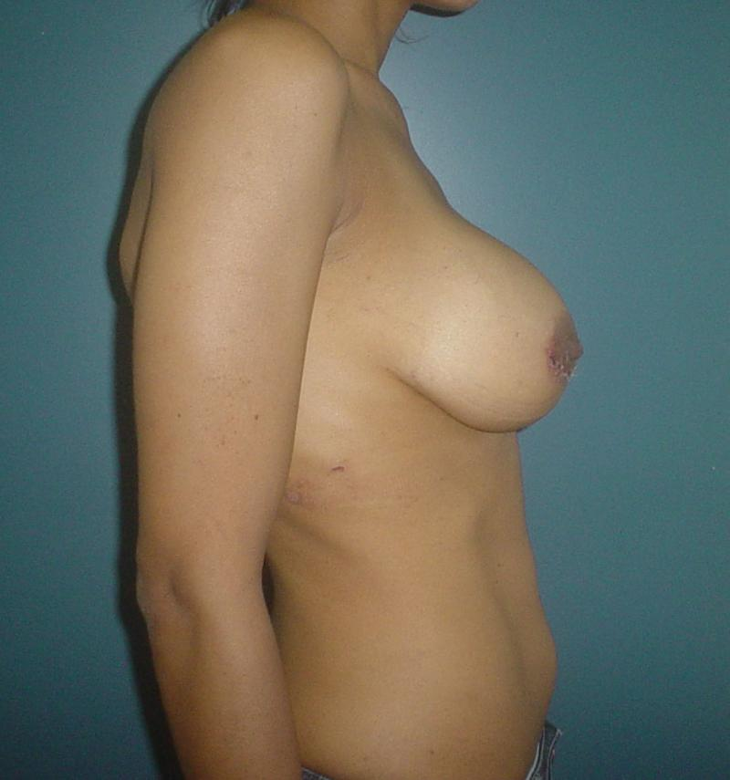 Gynecomastia Egypt, Breast Augmentation, , Breast Lift , Best Plastic Surgery