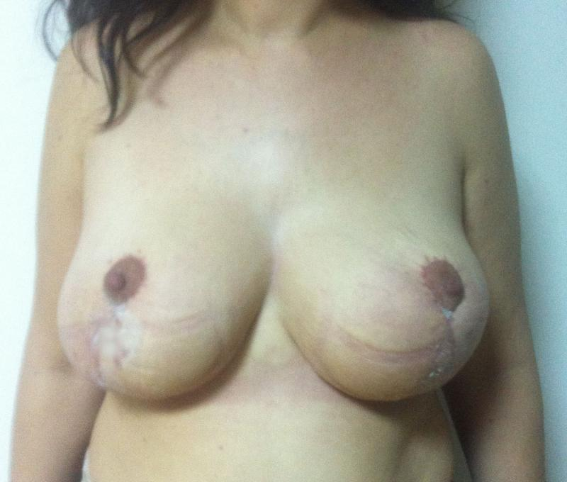 Breast Reduction Egypt, Breast Lift Egypt, Mastopexy Egypt, Reduction Mammoplast
