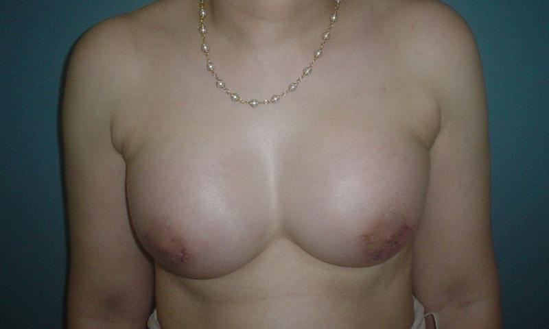 Breast Augmentation Egypt, Breast Enlargement Egypt, Breast Enhancement Egypt