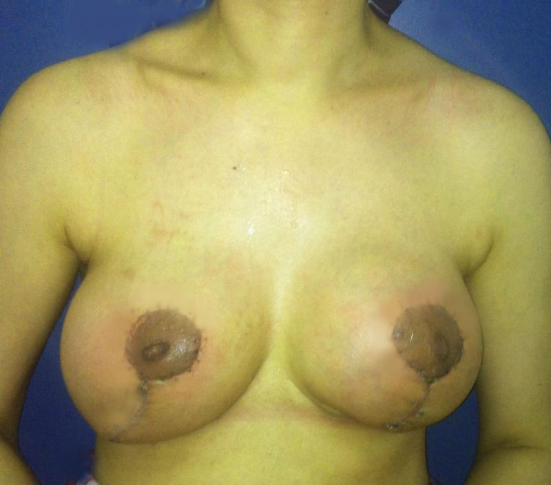 Breast Enlargement, Breast Lift, Mastopexy, Augmentation Breast, Plastic Egypt