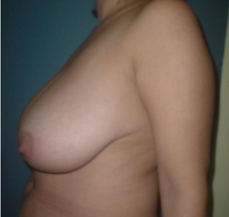 Plastic surgery Egypt,Breast lift,breast reduction,Mastopexy,Breast Enhancement