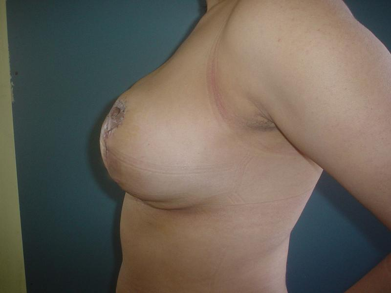 Cosmetic Surgery Egypt,Mastopexy,Breast Reduction,Breast Lift,Breast Enhancement