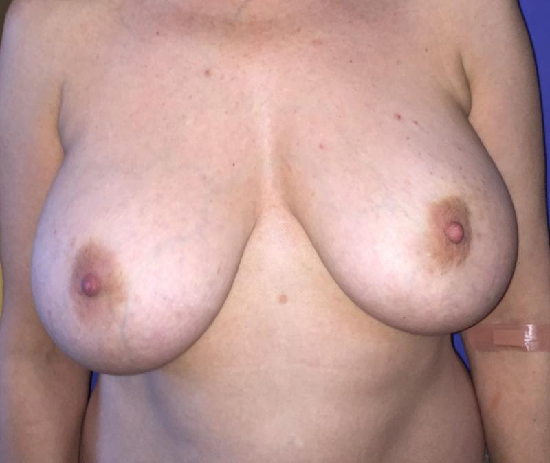 Breast Lift, Implant Capsular Contracture, Breast Fat Injection, Breast Reductio