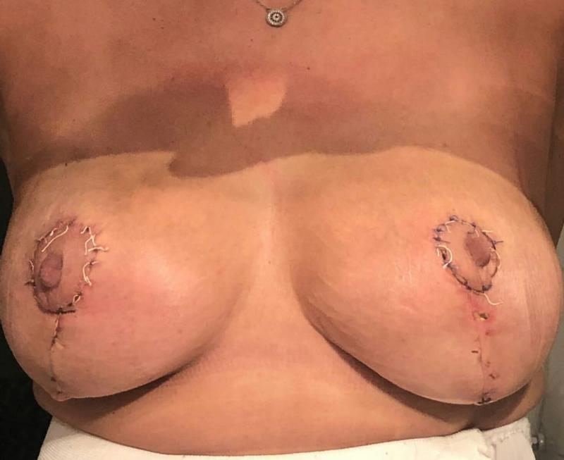Breast Reduction Lift, Reduction Mastopexy, Nipple reduction, Male Gynecomastia
